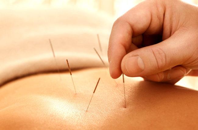acupuncture denver co
